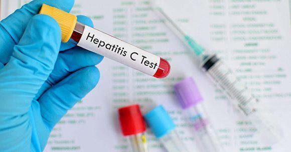 Cada 28 de julio se conmemora el Día Mundial de la Hepatitis.