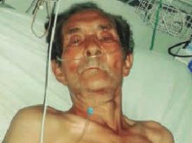 Murió anciano atropellado por vehículo conducido por agente del Gaula