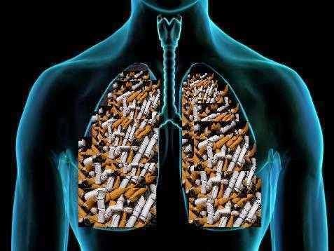 Enfisema pulmonar, el peaje de haber fumado
